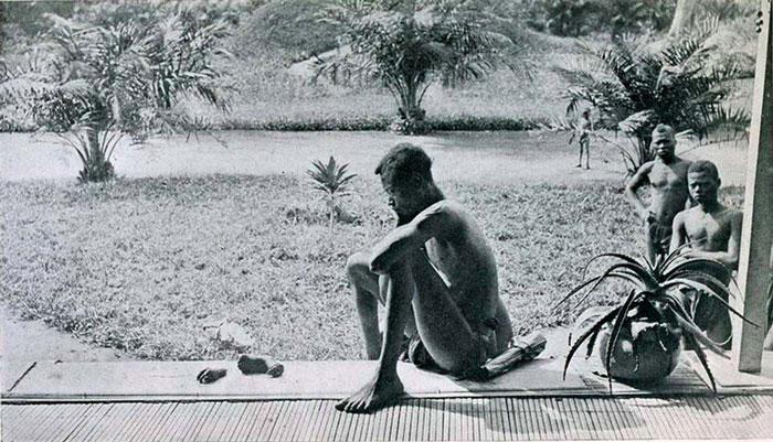 Конголезец смотрит на отрубленные руку и ногу своей 5–летней дочери в наказание за невыполнение дневной квоты на каучук, 1904 год, Конго