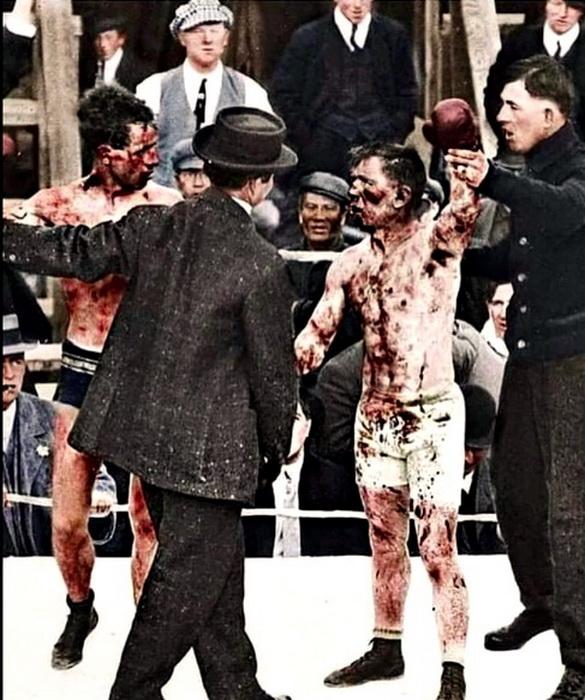 Вот так выглядят двое боксеров, которые только что подрались в 110 раундах!